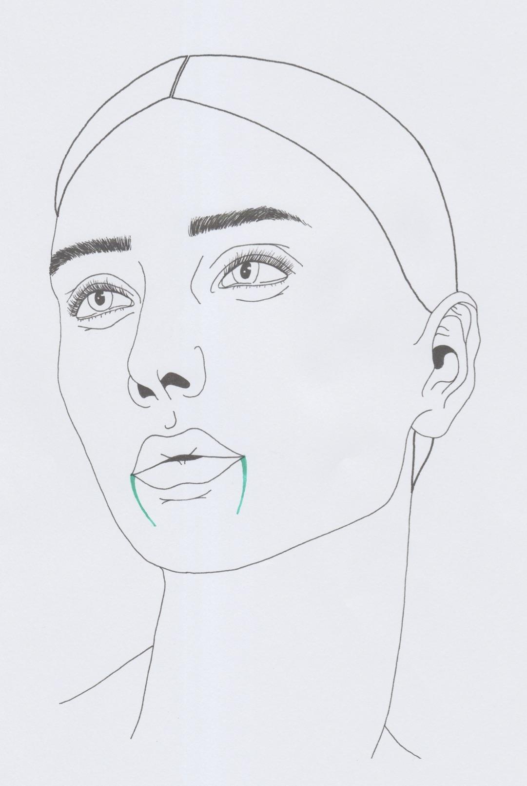 Die farbigen Linien zeigen die Mundwinkelfalten im Gesicht.