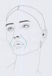 Nasolabialfalte - Wo im Gesicht